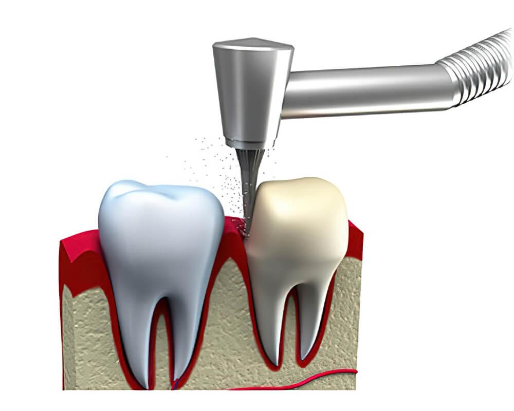 Próteses Dentárias Coroa 01