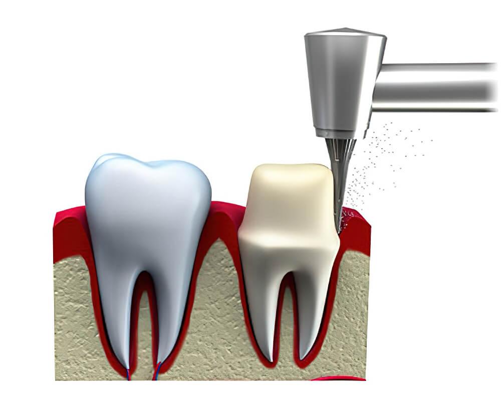 Próteses Dentárias Coroa 02