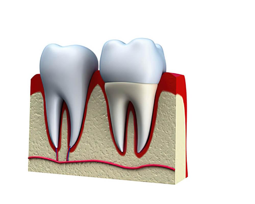 Próteses Dentárias Coroa 04
