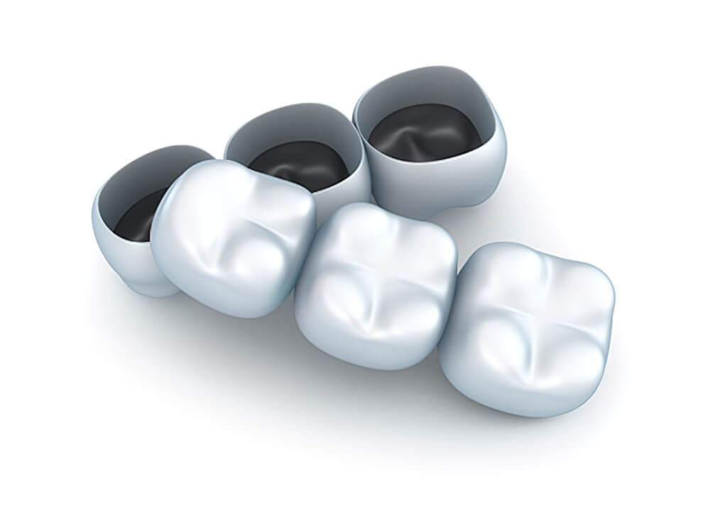 Próteses Dentárias Pontes